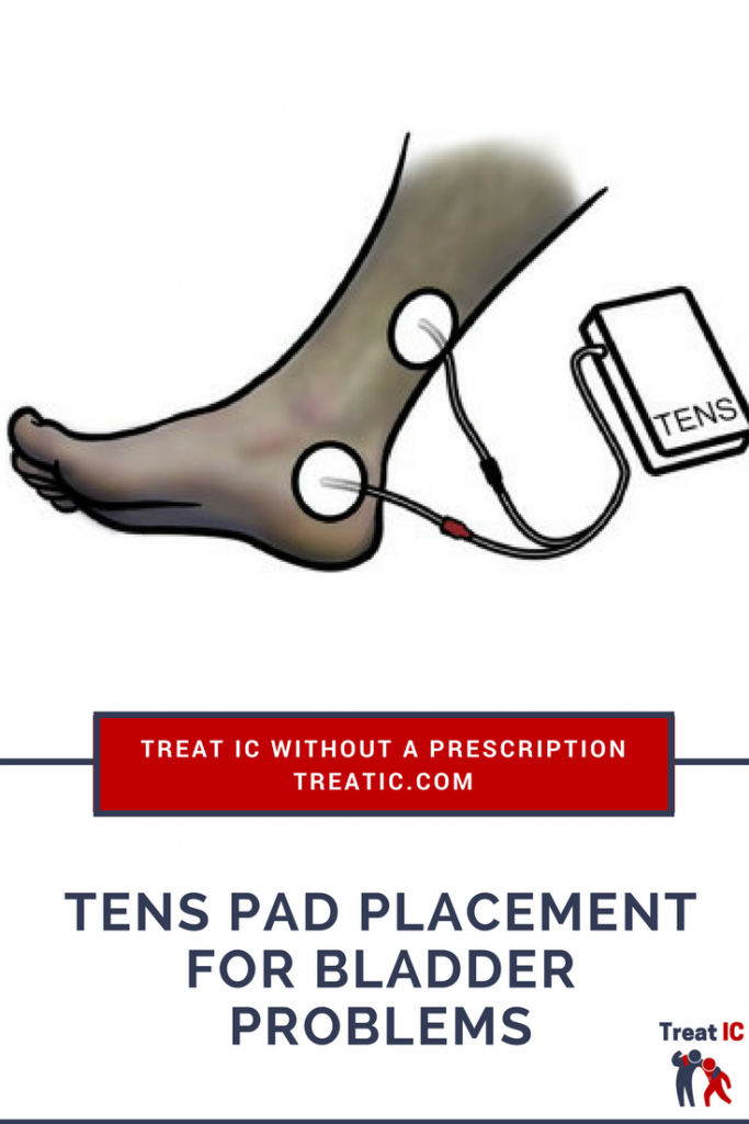 tens pad placement for IC pain and bladder problems